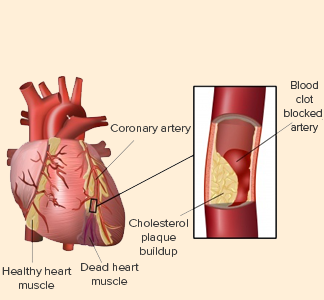 The Heart attacks caused by smoking debts